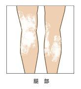 云南治白斑专科医院:如何减缓腿部白斑的扩散